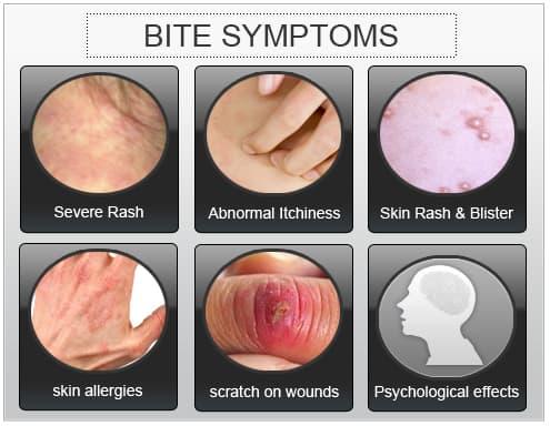 do fleas bite human skin #11